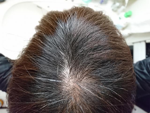 脱毛と抜け毛 ―有力な原因は8つ 遺伝説が有力 10